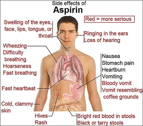 Overdose aspirin side effects: white background diagram of human body with aspirin overdose side effects.