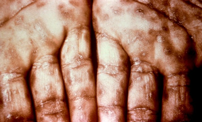 congenital syphilis treatment