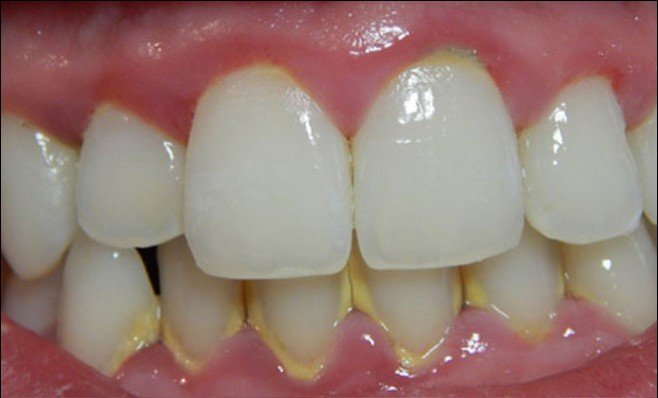treatment of gum problems