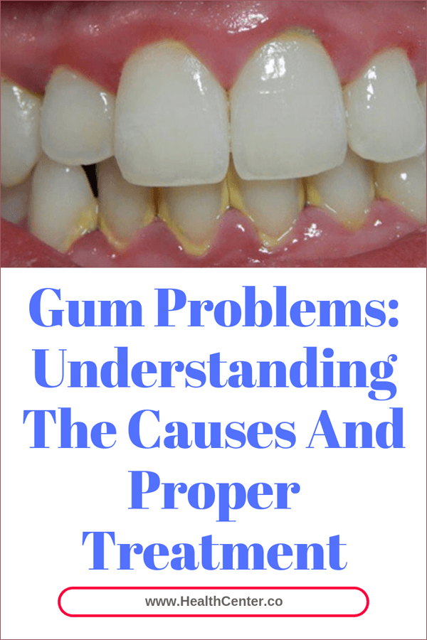 Gum Problems: Understanding The Causes And Proper Treatment
