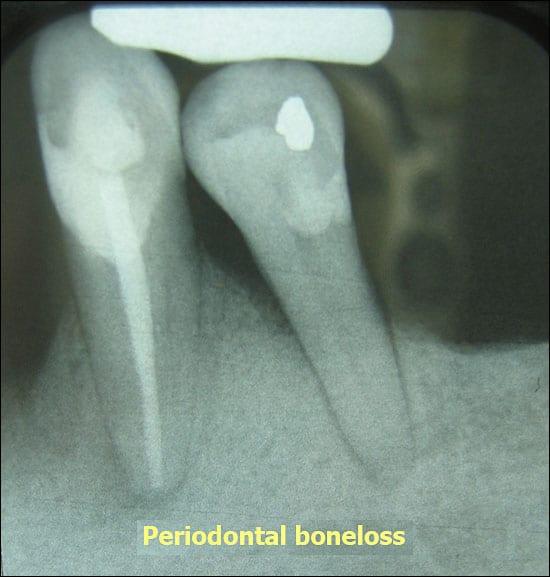 gum problems, gum disease
