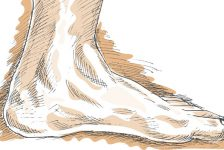 Flat Foot: Symptoms, Causes, And Treatment