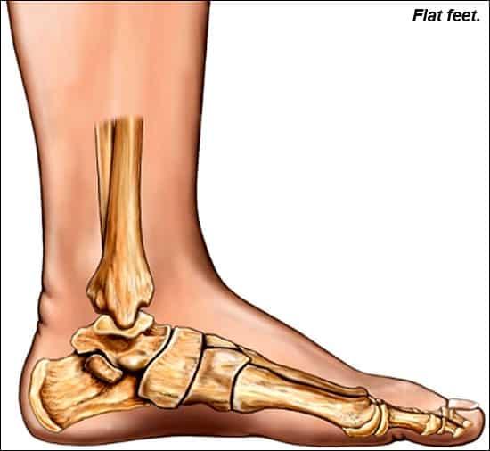 term flat foot