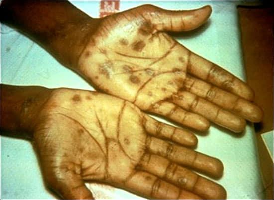 congenital syphilis palmar rash