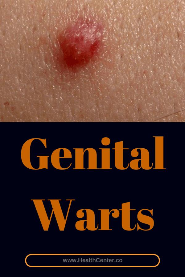 Genital warts treatment.