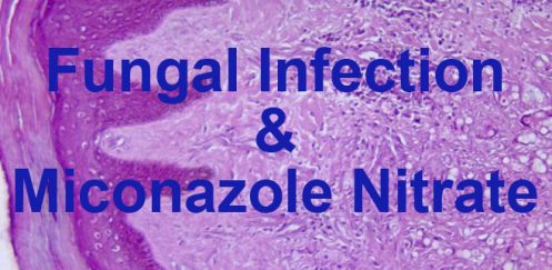 Miconazole nitrate and fungal infection.